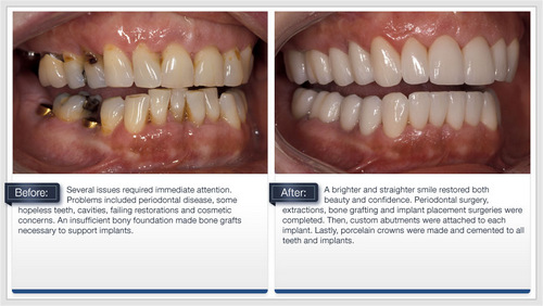 Before and after restorations from Palani Center for Dental Implants in Rancho Palos Verdes, CA