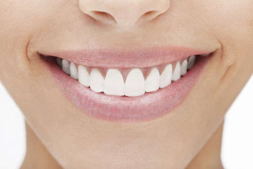 Close-up of woman smiling with porcelain veneers from Palani Center for Dental Implants
